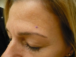skin-cancer-pictures