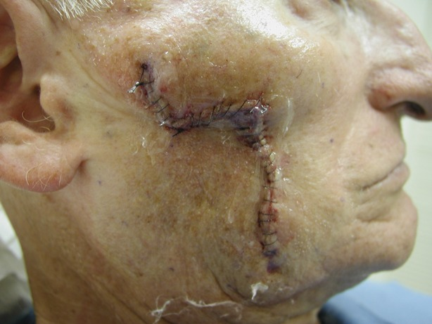 skin-cancer-pictures-after-reconstructive-surgery