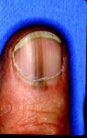 Melanoma Of The Nail Bed – What\'s Hiding Under Your Nails? | jupiter