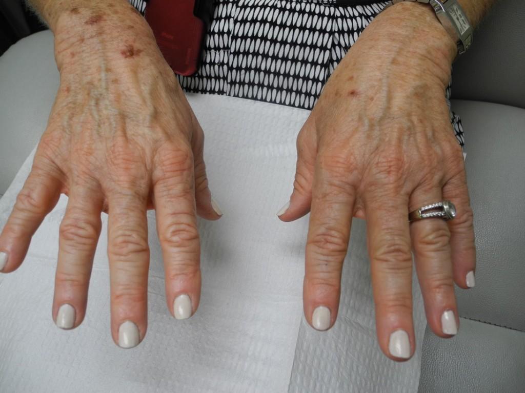 anti-aging-laser