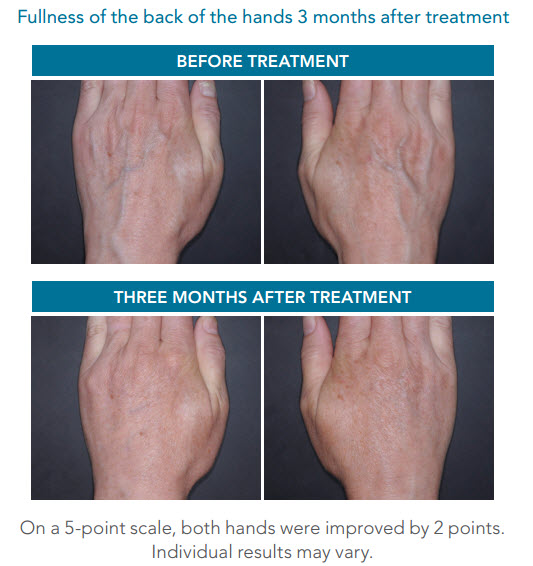 radiesse-hands-before-after