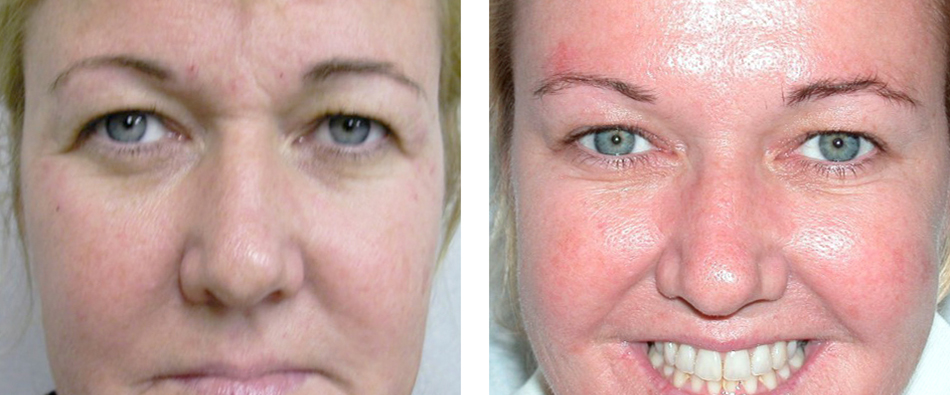 Dermatologist Jupiter Fl Medical Spa Palm Beach Gardens