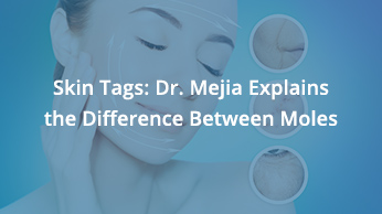 Skin Tags: Dr. Mejia Explains The Difference Between Moles