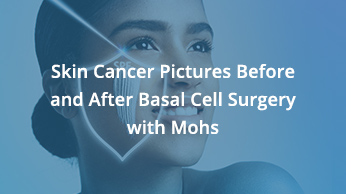 Skin Cancer Pictures Before And After Basal Cell Surgery with Mohs