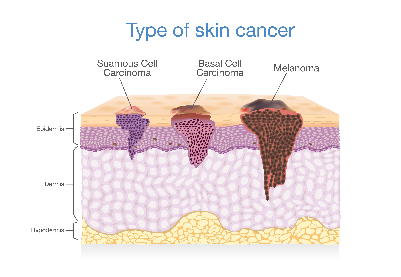 skin cancer jupiter fl