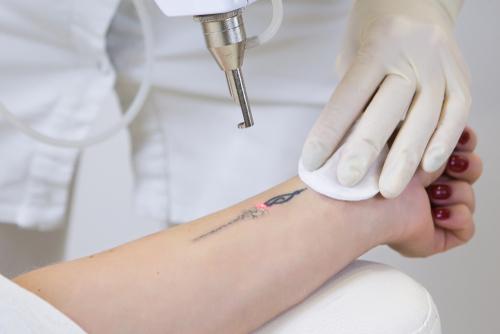 tattoo removal jupiter fl